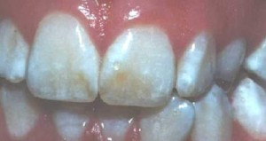 Image of Dental fluorosis