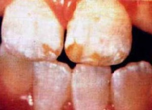 Picture of Dental fluorosis