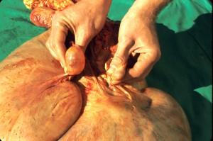 Image of Follicular Cyst
