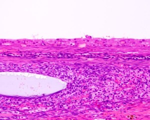 Picture of Follicular Cyst