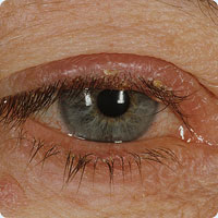 Image of Ocular rosacea