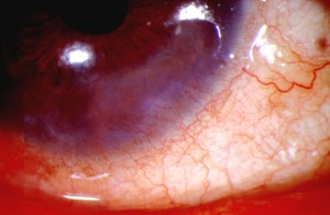 Picture of Ocular rosacea