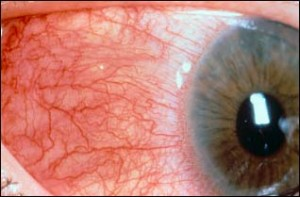 Image of Scleritis