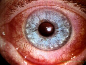 Picture of Scleritis
