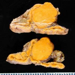 Image of Adrenal Adenoma