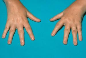 Picture of Juvenile Rheumatoid Arthritis