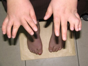 Picture of Bardet-Biedl Syndrome
