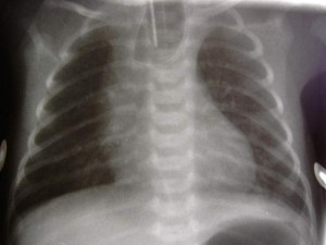 Picture of Esophageal Atresia