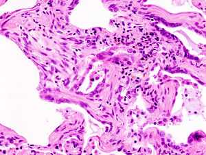 Picture of Idiopathic Pulmonary Fibrosis