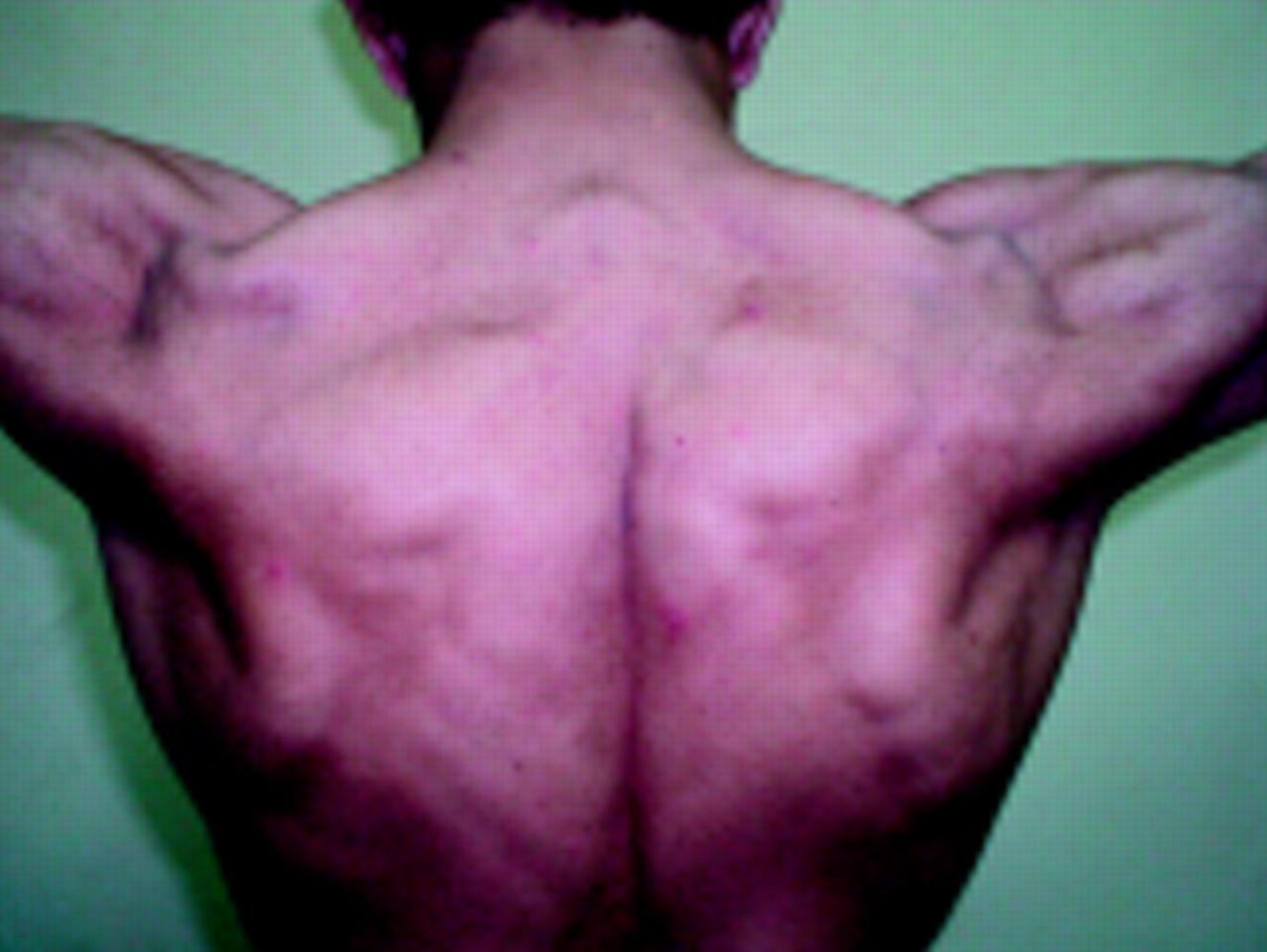 Myotonia