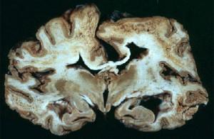 Image of Creutzfeldt-jakob disease