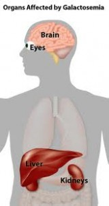 Picture of Galactosemia