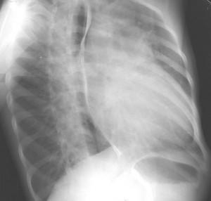 Image of Patent ductus arteriosus
