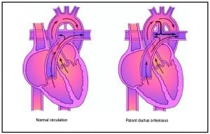 Picture of Patent ductus arteriosus