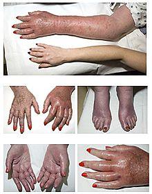 Polycythemia Vera Symptoms