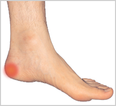 Image of Heel spur