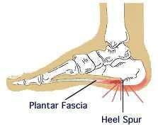 Picture of Heel spur