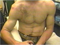 Image of Dislocated shoulder