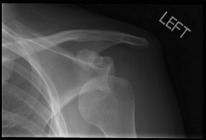Picture of Dislocated shoulder