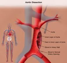 Image of Aortic dissection