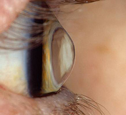 Image of Keratoconus