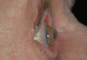 Picture of Keratoconus