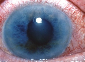 Picture of Narrow Angle Glaucoma