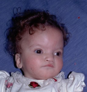 Picture of Wolf-Hirschhorn Syndrome