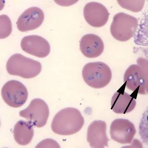 Image of Anaplasmosis
