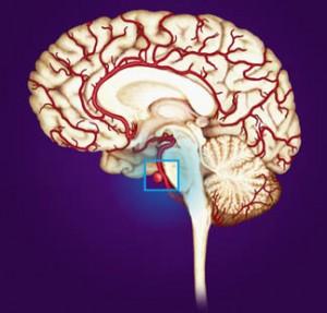 Image of Cerebral Aneurysm