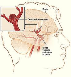 Picture of Cerebral Aneurysm