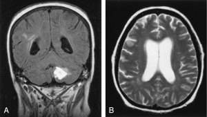 Image of Cerebral Vasculitis