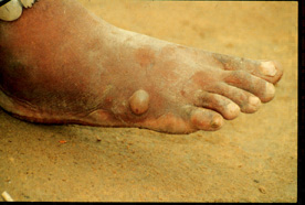 Picture of Dracunculiasis