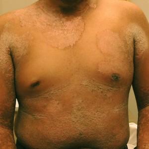 Picture of Epidermolytic Hyperkeratosis