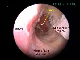 Image of Nasopharyngeal carcinoma