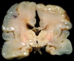 Image of Periventricular leukomalacia