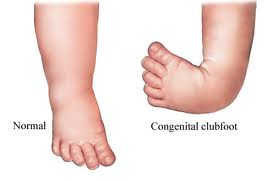 Picture of Talipes equinovarus