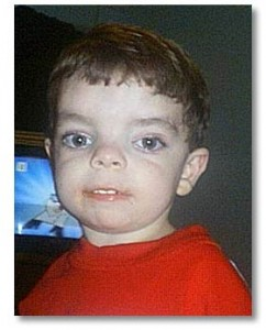 a look at the causes symptoms and treatment of prader willi syndrome Prader willi syndrome essay examples  an indepth look at the genetic disorder 'prader-willi  a look at the causes, symptoms and treatment of prader-willi syndrome.