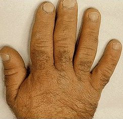 Image of Acromegaly