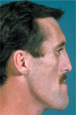 Picture of Acromegaly
