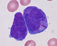 Image of Acute Lymphoblastic Leukemia