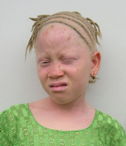 Image of Albinism