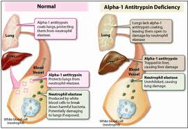 Image of Alpha 1-Antitrypsin Deficiency