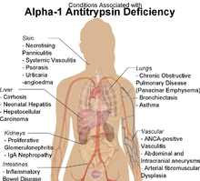 Picture of Alpha 1-Antitrypsin Deficiency