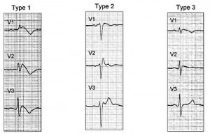 Image of Brugada Syndrome