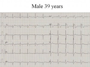 Picture of Brugada Syndrome