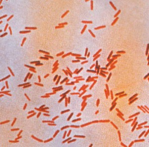 Image of Salmonellosis