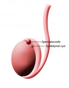 Picture of Spermatocele