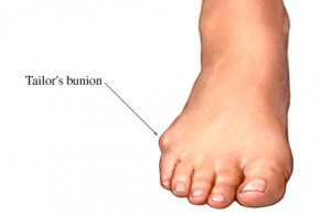Image of Tailor's Bunion