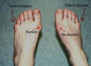 Picture of Tailor's Bunion